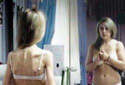 Что вы знаете об анорексии?