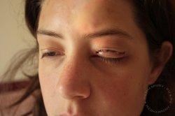 Первая помощь при колотых и резаных ранах глаза или века