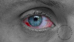 Первая помощь при химическом ожоге глаза