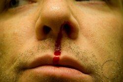 Кровь из носа - первая помощь