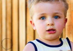 Стоматит у детей - причины и лечение