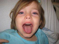 Увеличение миндалин у ребенка