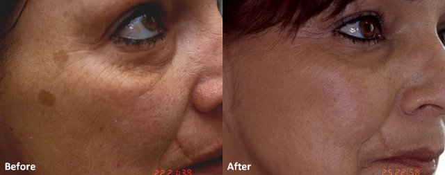 Как убрать пятно на лице после родов фото